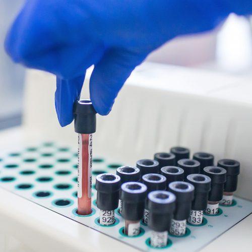 Эксперты ИНВИТРО проанализировали состояние здоровья новосибирцев
