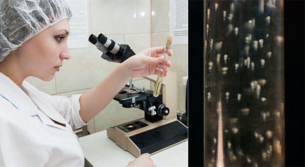 Так в лабораторной пробирке выглядят живые бифидобактерии, которые отвечают за иммунитет. У здорового человека в кишечнике этих бактерий должно быть подавляющее количество, до 90%